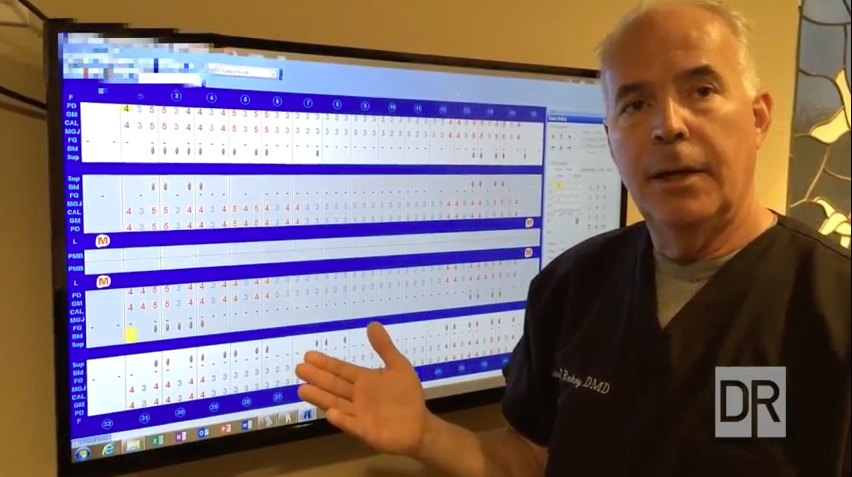 The Purpose of Periodontal Probing and Charting